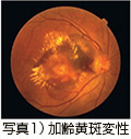 写真1)加齢黄斑変性