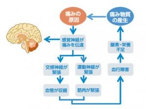 ●交感神経・運動神経が関与する痛みの悪循環